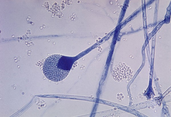 1200px-Mature_sporangium_of_a_Mucor_sp._fungus