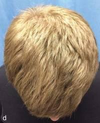 Hair Baldness Treatment Home Remedies