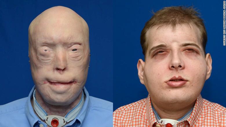 151116113726-face-transplant-split-hardison-exlarge-169