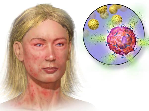 Illustration depicting mast cell activation and anaphylaxis: Blausen.com staff. Blausen gallery 2014.  Wikiversity Journal of Medicine. DOI:10.15347/wjm/2014.010. ISSN 20018762. - Own work
