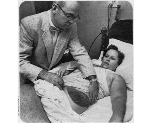 "AL.com: ""A photo of Ann Hodges in 1954 shows the bruise left on her upper thigh after she was struck by a meteorite in Sylacauga, Ala. ""(Alabama Museum of Natural History)"