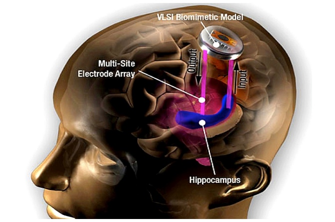 brain-implant-hippocampus-usc