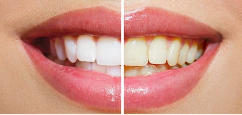 Toothstars Has A Galaxy Of Tooth Whitening Information To Share