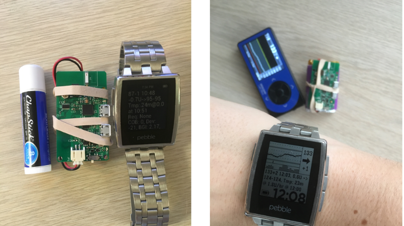How a maker with Type I diabetes led an open source project to create a free-as-in-code artificial pancreas