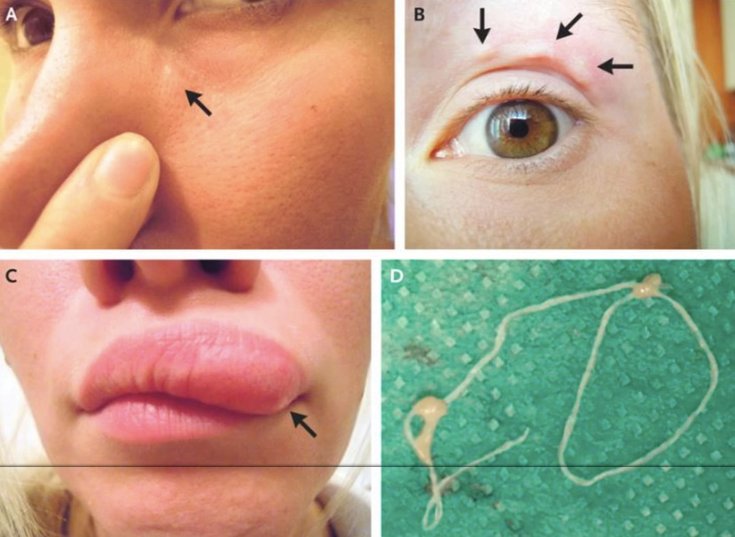 Mysterious moving lump on woman's face turned out to be a worm