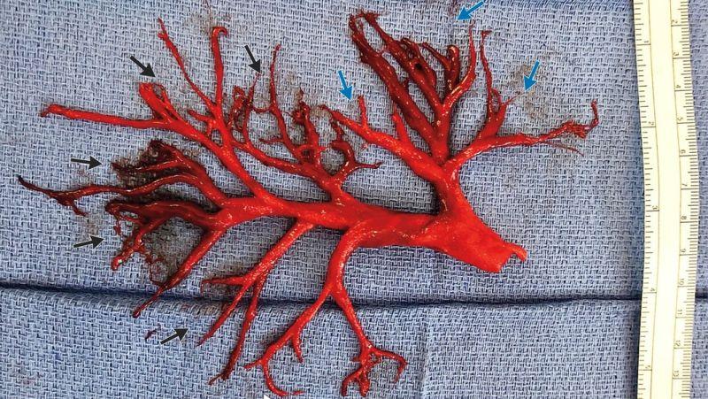 Coágulo de sangre gigante con forma de pulmón del que salió / Boing Boing