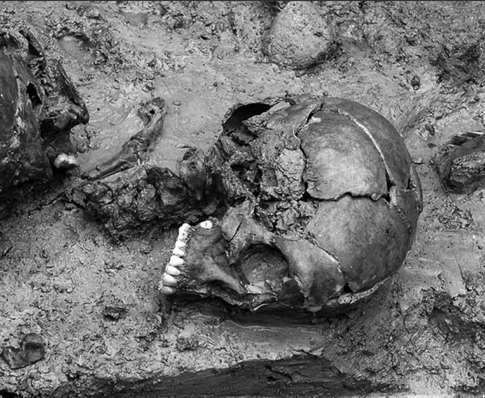 Archaeological evidence for the Iron Age practice of embalming your enemies' severed heads with resin and displaying them